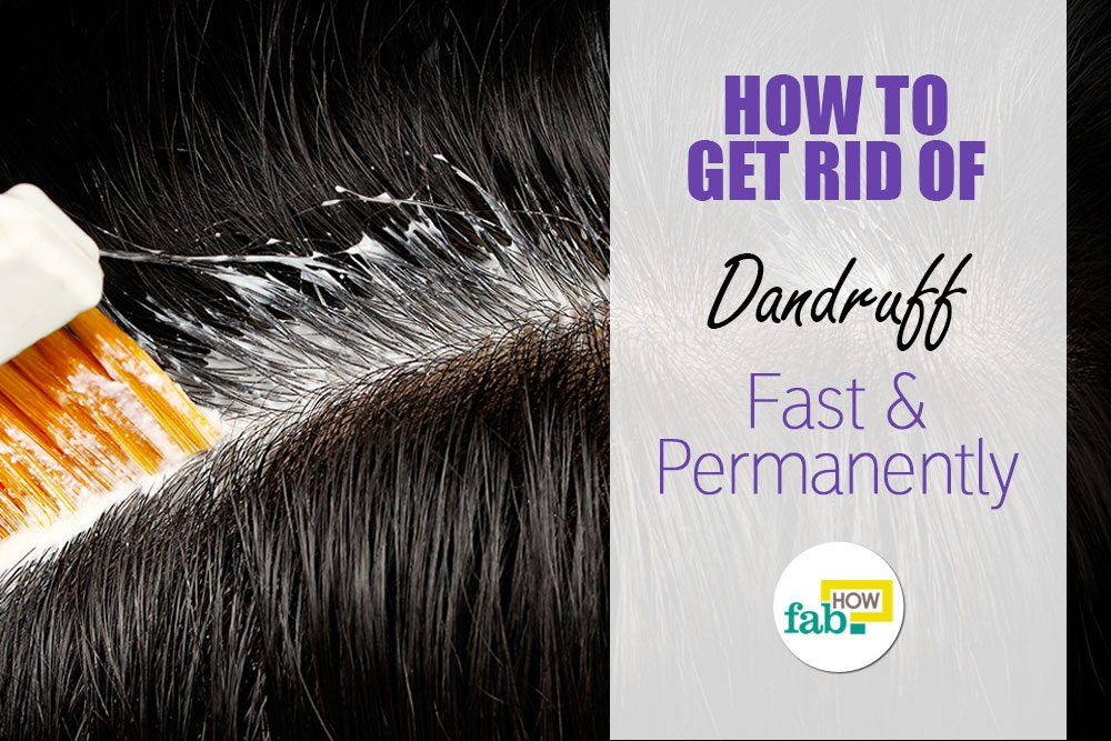 How To Get Rid Of Dandruff Fast And Permanently