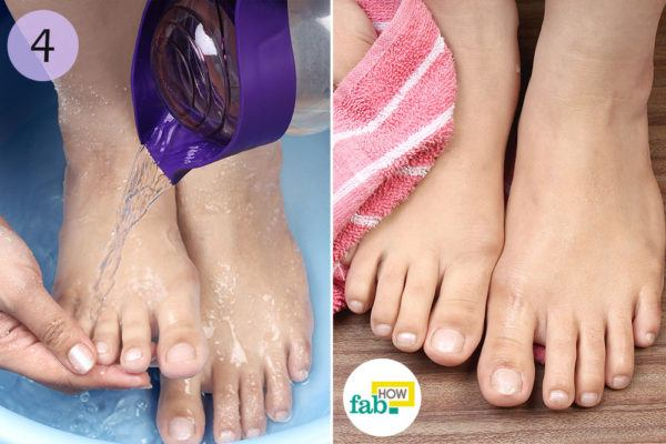 Rinse your feet and pat dry