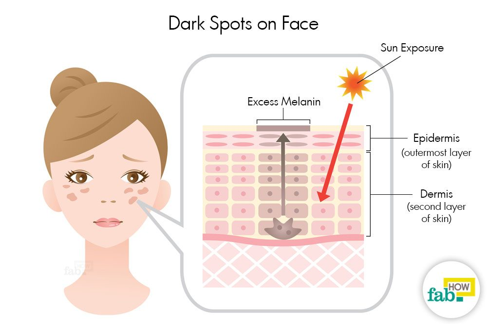 How To Get Rid Of Dark Spots On Face With Just 1 Ingredient