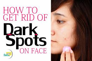 how to get rid of spots on face nhs