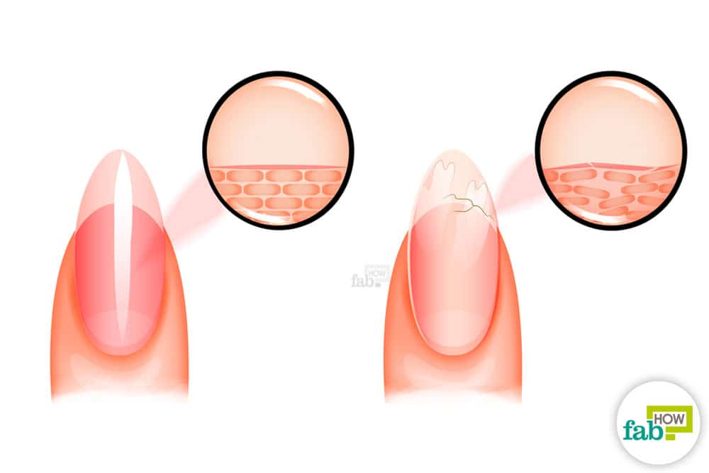 Brittle Nails Not Only Look Unealing And Weak Chipped Often Expose The Nail Bed Are An Open Invitation To Infections That Can Be Very