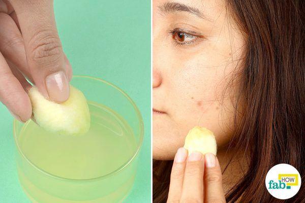 lemon juice. rosewater for dark spots
