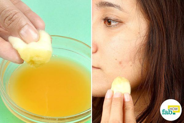 how to get dark spots off your face