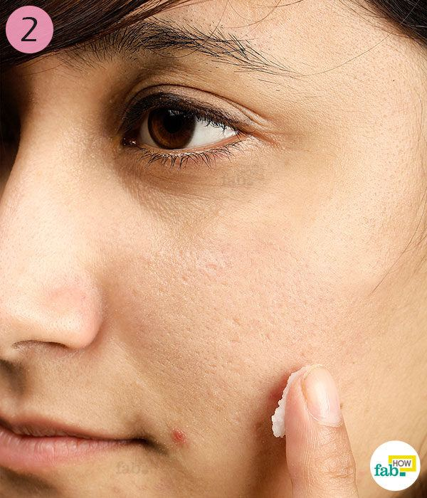 Cover the pimples with baking soda paste