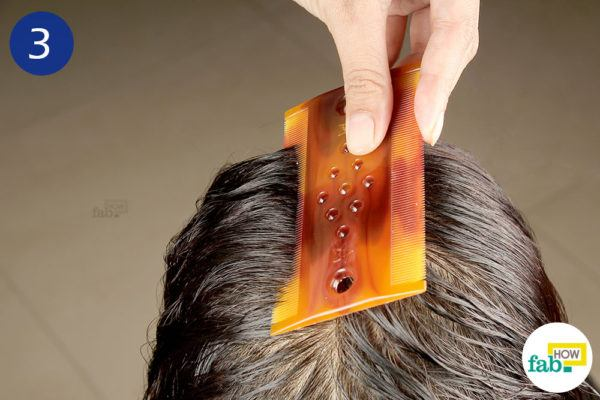 Step-3.Remove the dead lice and nits with a nit comb