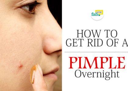 Get rid pimple overnight