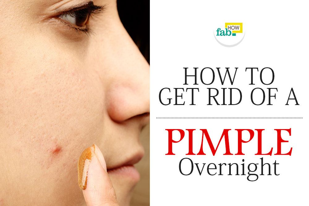 Get rid pimple overnight
