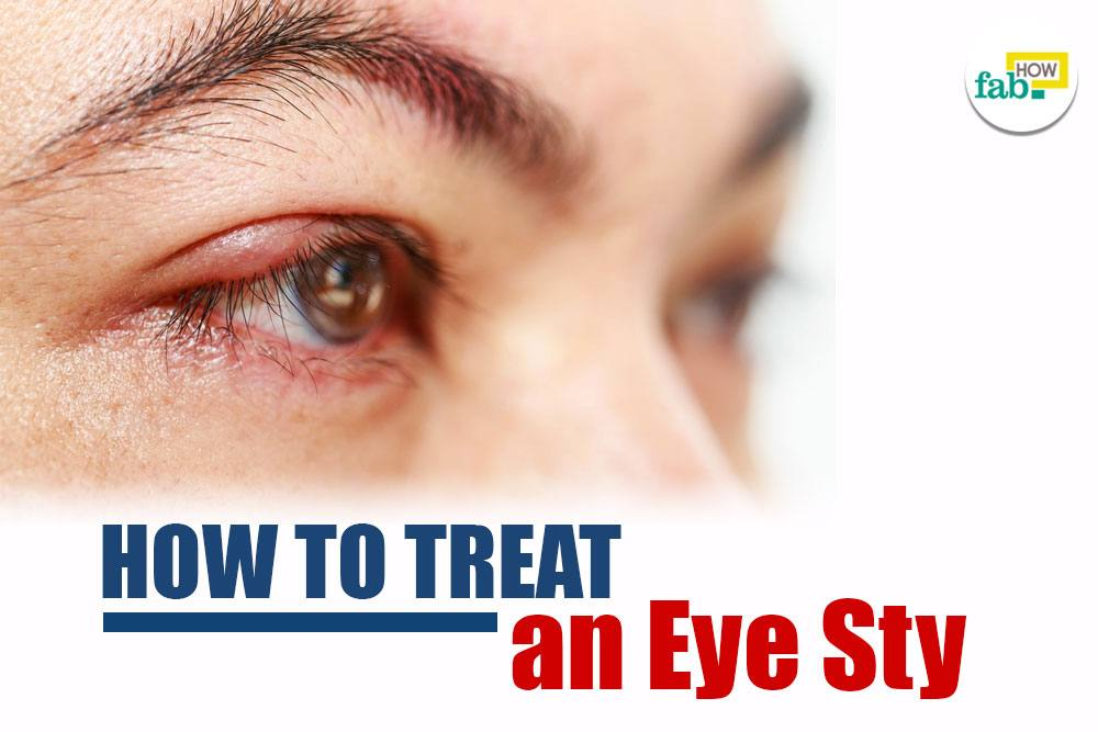 Super Easy Way to Treat an Eye Sty Fast