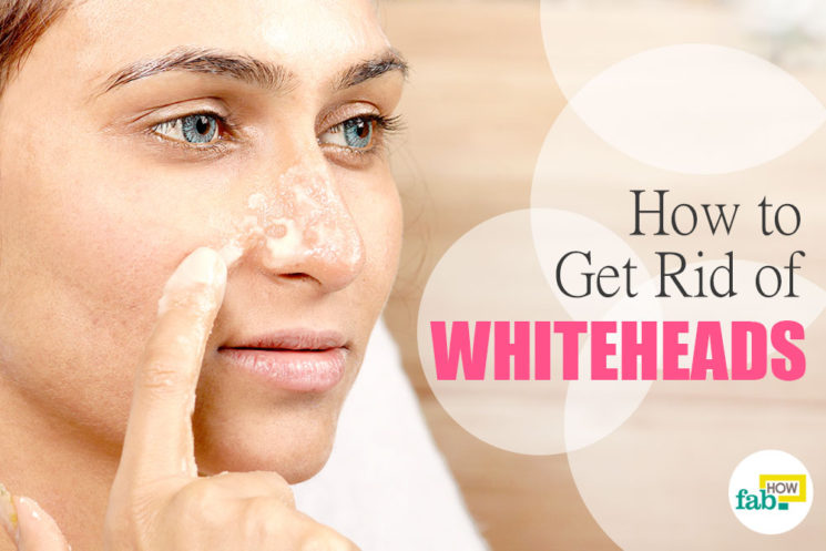 How to Get Rid of Whiteheads on Nose and Face