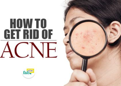 Get rid acne using 1 ingredient