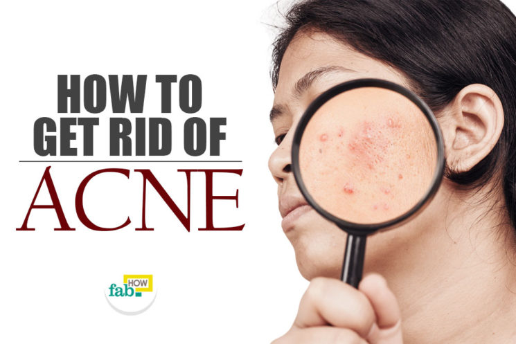 How to Get Rid of Acne Using This 1 Ingredient