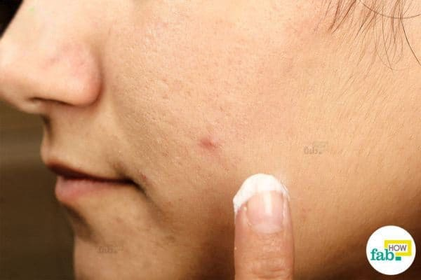 intro get rid of pimple