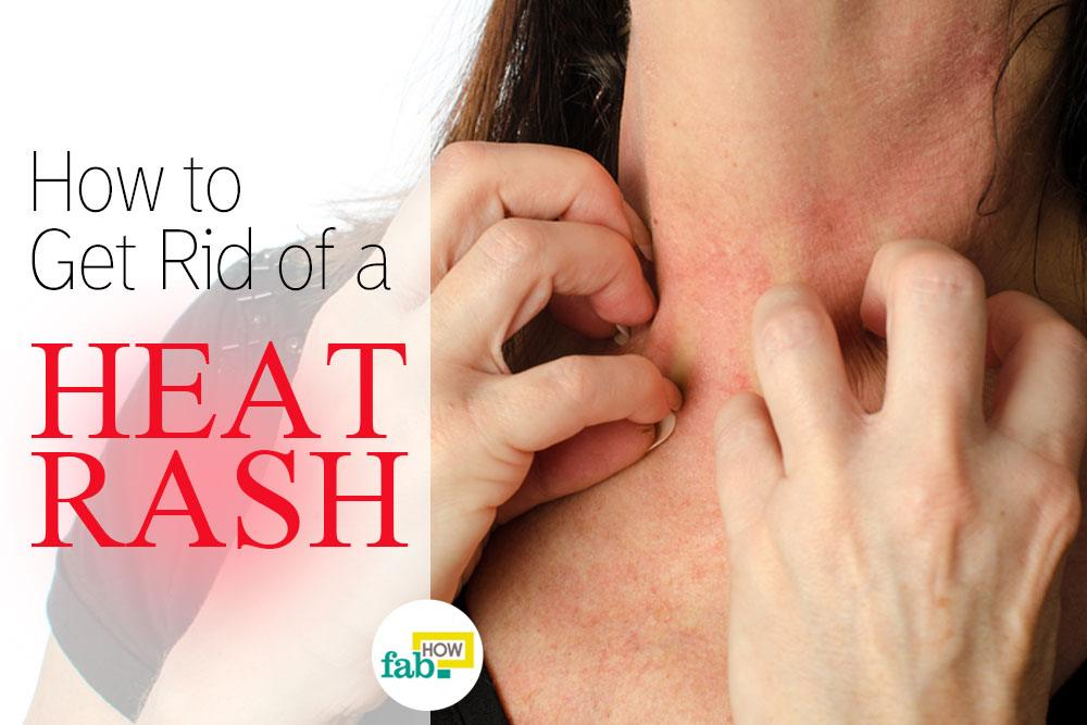 heat adults treatment Best rash