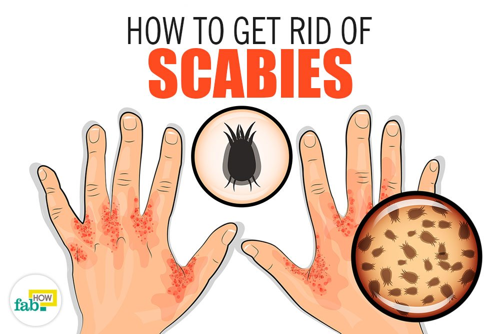 how to get scabies to stop itching