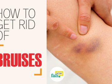 how to get rid of bruises with vinegar