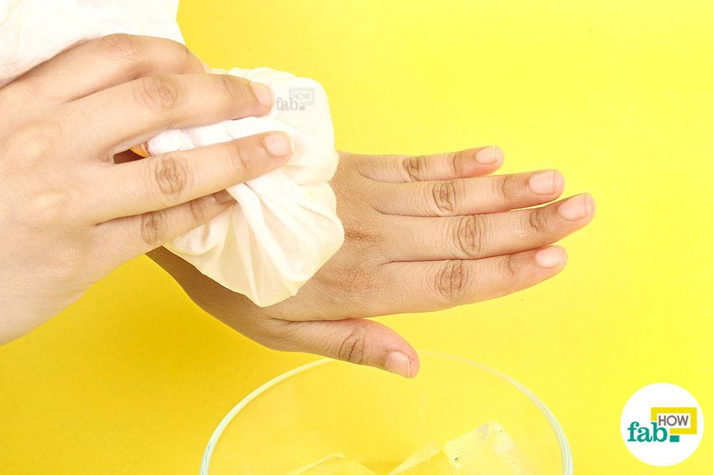 Get Rid of Hives Fast