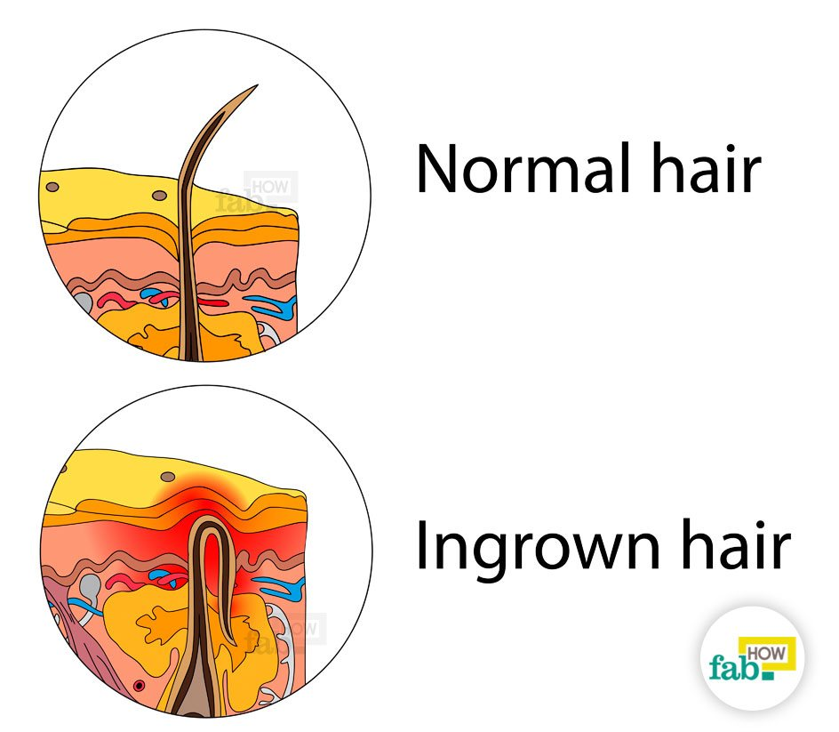 how to remove an ingrown hair quickly without laser fab how