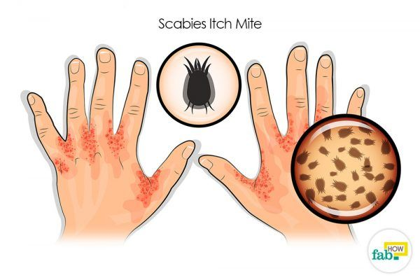 get rid of scabies
