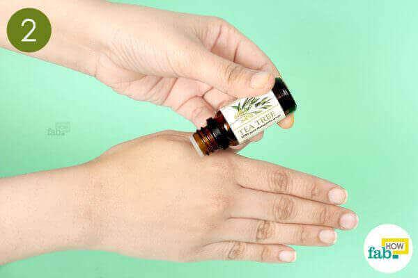 step-2-apply-tea-tree-oil