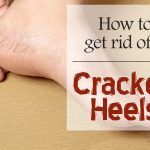 cracked heels
