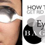 get rid of eyebags