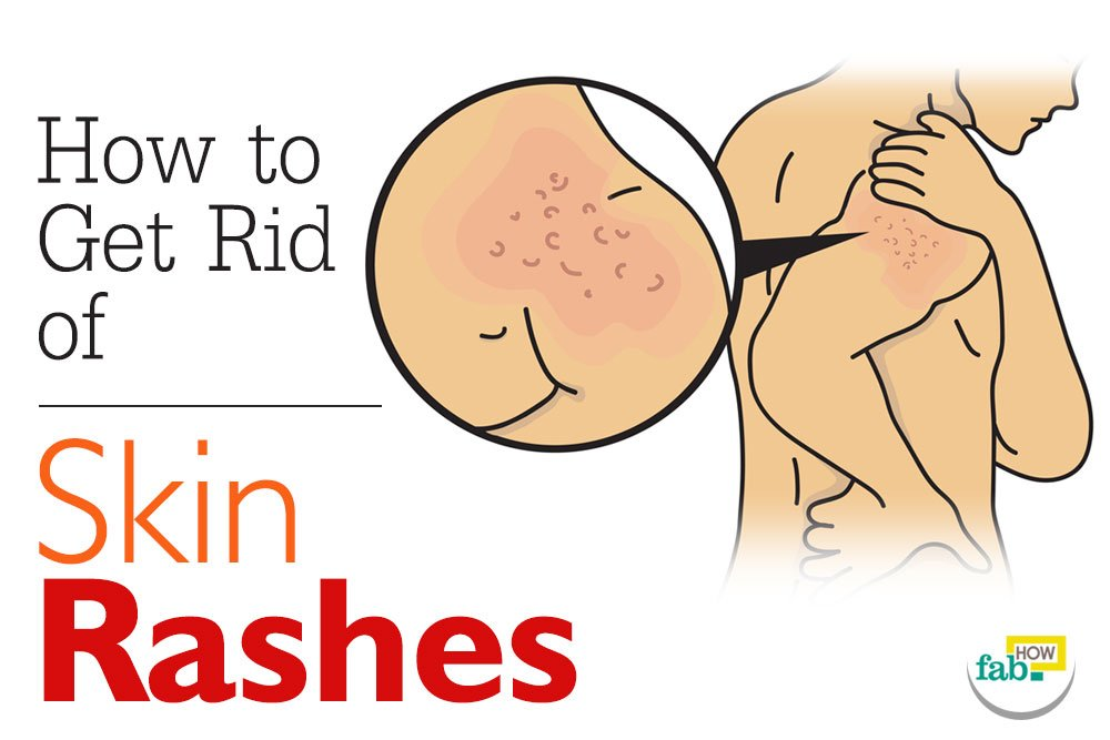 How To Get Rid Of Stress Rash Naturally