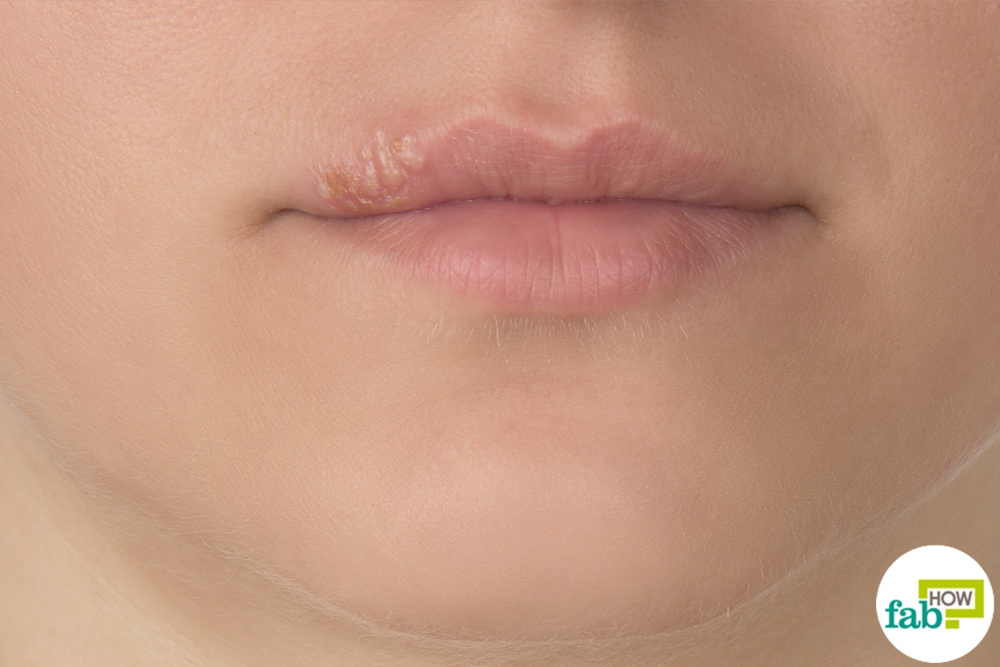get rid of cold sore
