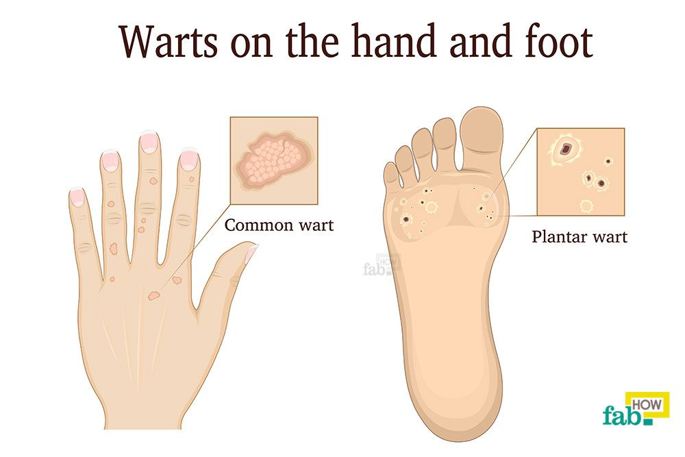 How to get rid of warts on hands home remedies