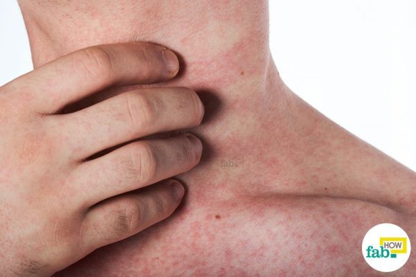 get rid of skin rashes