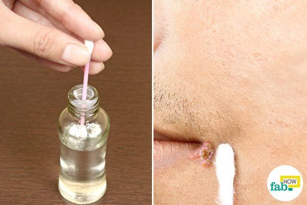 dab acetone on cold sore