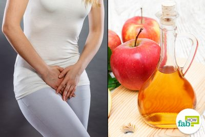 apple cide vinegar acv yeast infection