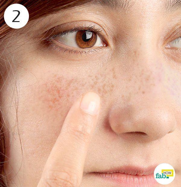 apply lemon juice on freckles