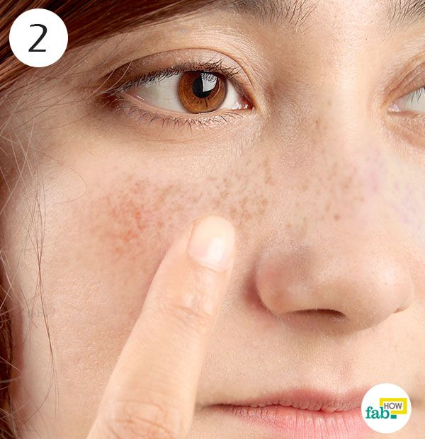 how to get rid of my freckles fast