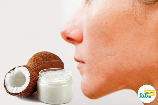 Coconut Oil to Clear Acne