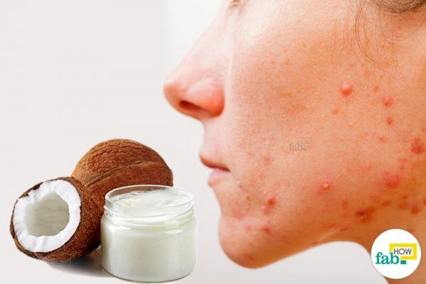 get rid of acne using coconut oil