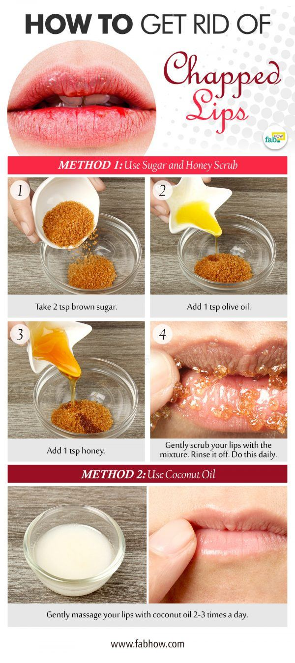 how to get rid of chapped lips
