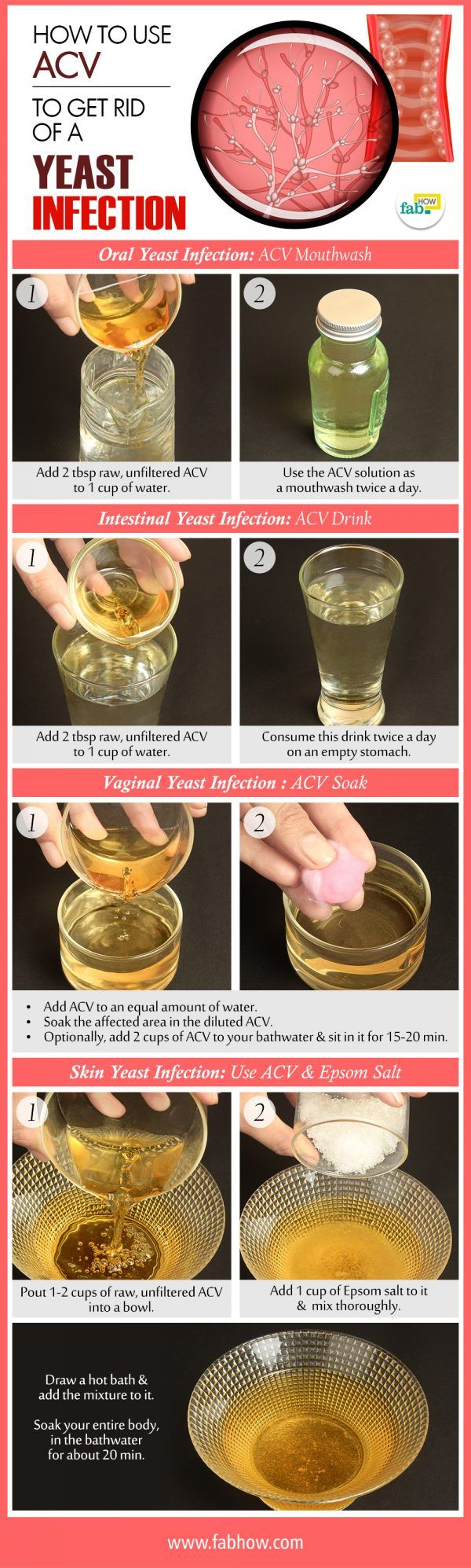 acv for yeast infection