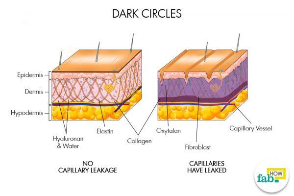 how to get rid of dark circles fast and naturally | fab how dark fiber diagram dark circles diagram
