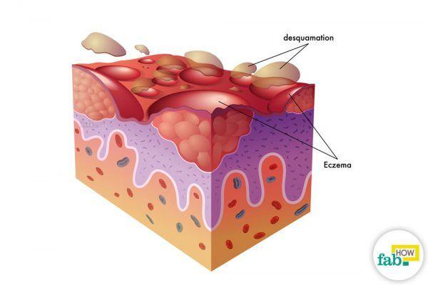 get rid of eczema