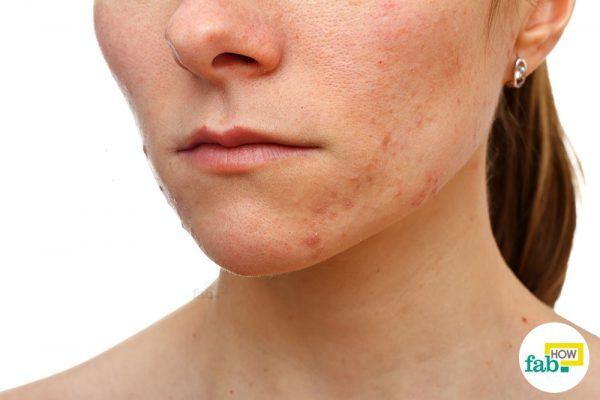 get rid of blemishes