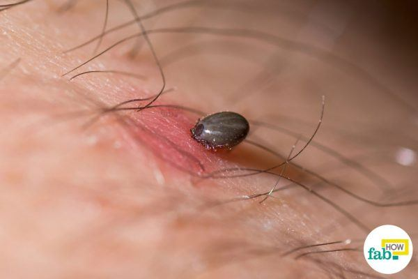 how to remove ticks