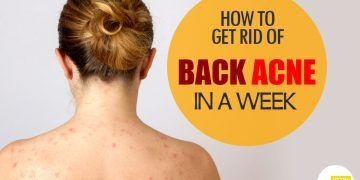get rid of back acne