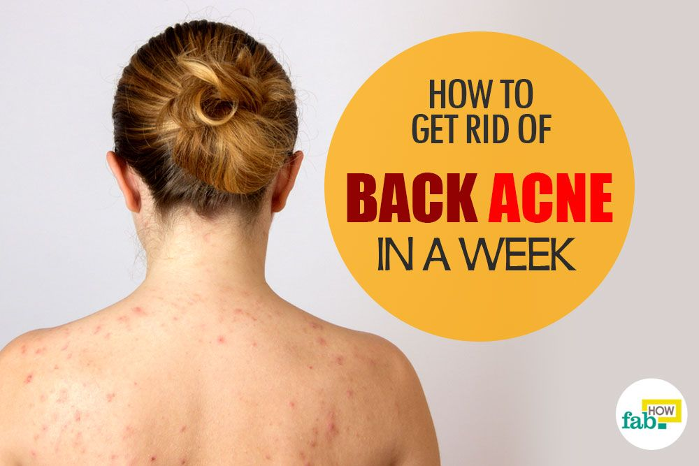 How to Treat Back Acne
