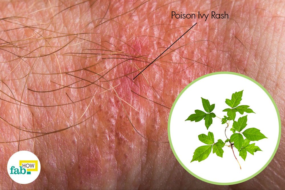 Still A Run In With Poison Ivy Is Often Unavoidable Especially The Summertime Fortunately Remes To Get Rid Of Rash Are Just As Common