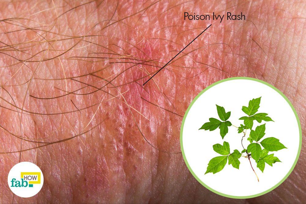 poison ivy treatment steroids