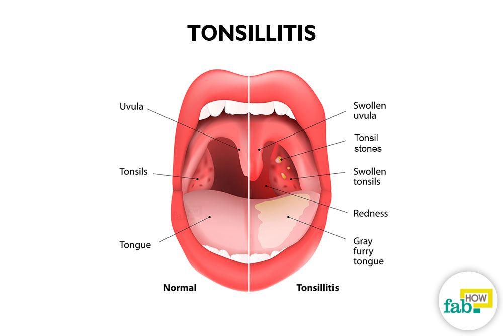 Image result for टांसिल