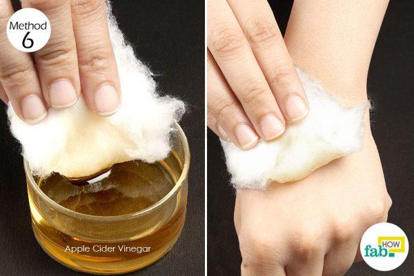 apple cider vinegar on rash