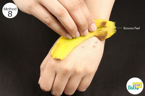banana peel to treat mosquito bites