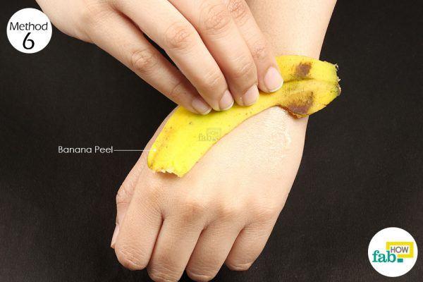 banana peel for poison ivy rash