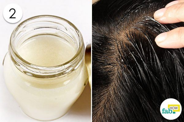 apply coconut oil lemon for dandruff